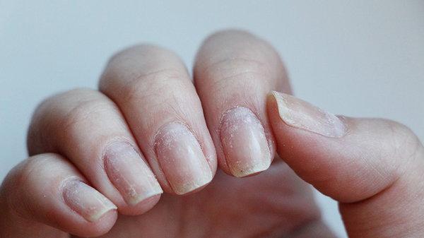 Как отрастить ногти, которые не слоятся и не ломаются