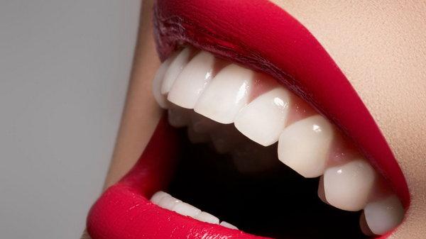 Улыбка на миллион: как отбелить зубы в домашних условиях за 3 минуты