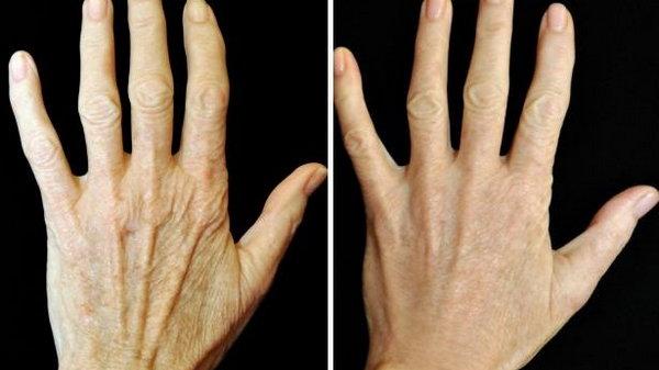 Руки 46-летней выглядели, как у 70-летней. Но когда ее подруга рассказала, этот секретный рецепт, она не может узнать свои руки!