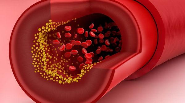 Холестерин: норма у женщин разного возраста